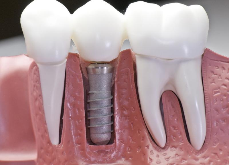 схема импланта в зубном ряду в стоматологической клинике Черкассы