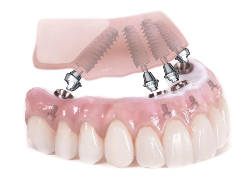 базальная имплантация зубов в клинике Багита