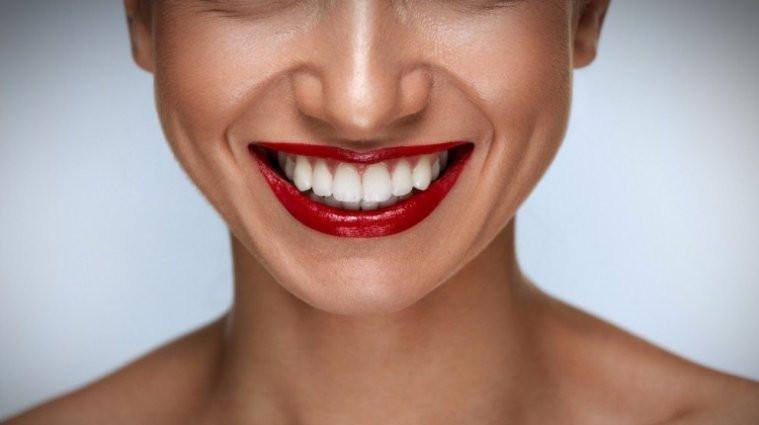 фото девушки после имплантации зубов в стоматологической клинике Черкассы