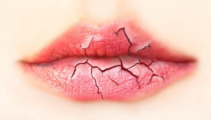 фото потрескавшихся губ и стоматита во рту