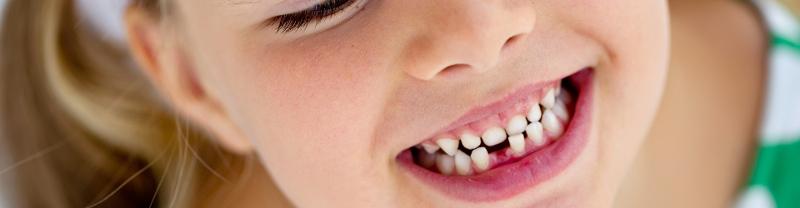 фото ребенка с молочными зубами
