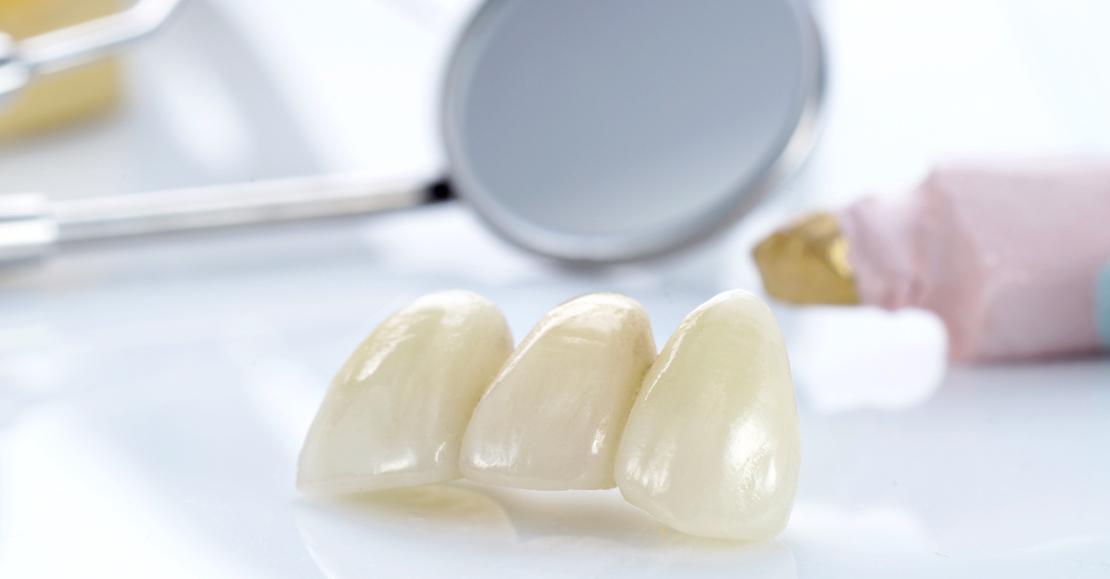 коронки для протезирования зубов в стоматологической клинике в Черкассах