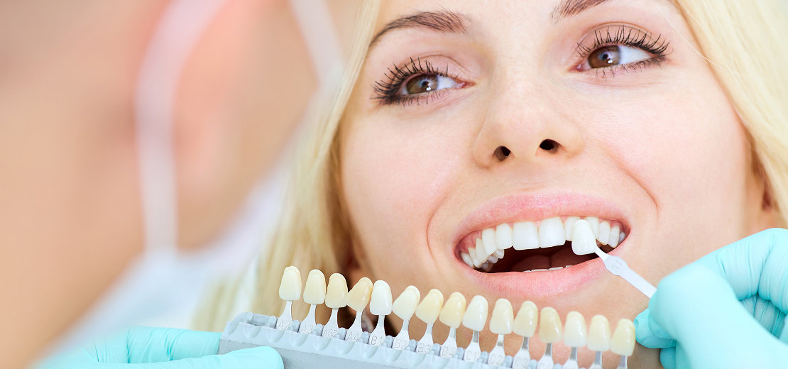 подбор цвета для протезирования зубов в стоматологической клинике Багита