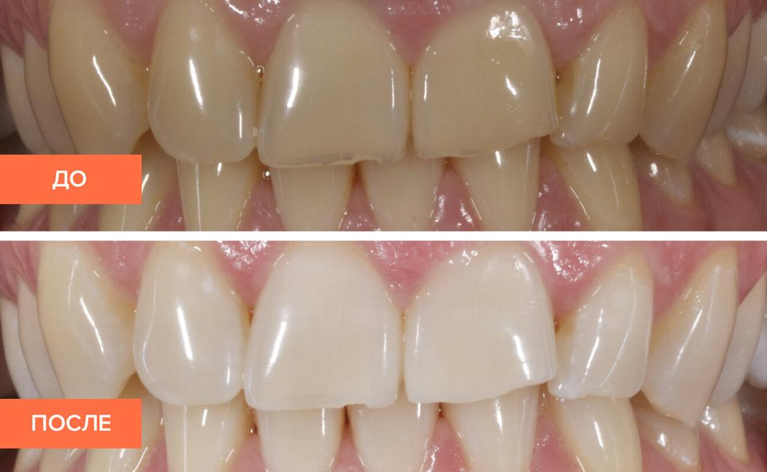на фото профессиональная чистка зубов в клинике Багита до и после